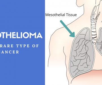 Mesothelioma: A Rare Type Of Aggressive Cancer