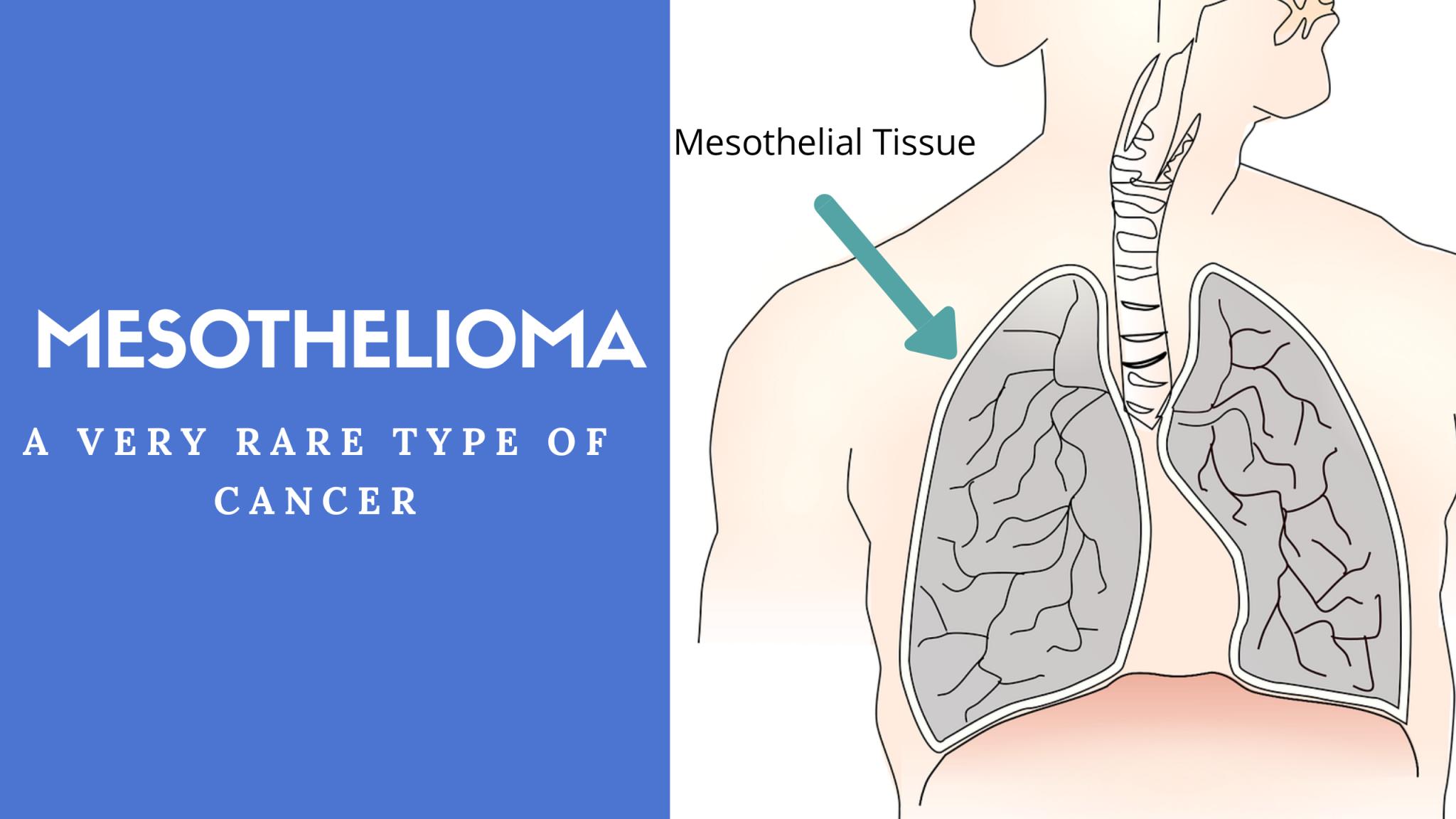 Mesothelioma: A Rare Type Of Aggressive Cancer